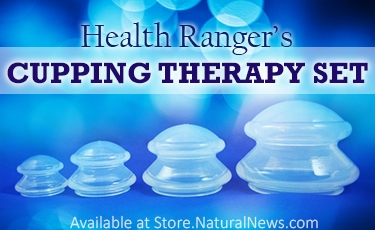 Cupping-Therapy-Set-AD.jpg