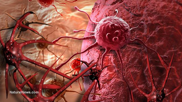 Ուղեղի անբուժելի ուռուցքը բուժել են մալարիայի դեմ դեղամիջոցով
