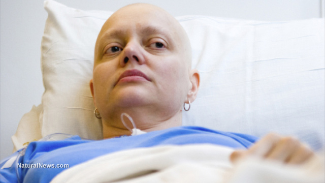 Unbelievable scam of cancer industry blown wide open Cancer-Patient-Dying-Sick-Chemo-Bald