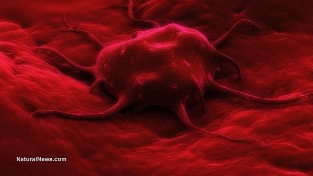 Bone marrow cancer