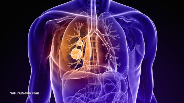 Advanced stage lung cancer
