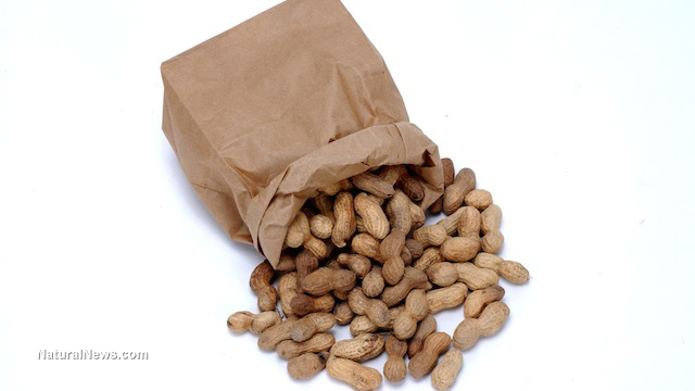 essay on food allergies Introduction when someone has a food allergy, it is said that the person's immune system has reacted in an exaggerated manner to some kind of food that the person has ingested (chafen et al, 2010.