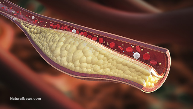 cholesterol news, articles and information:, Skeleton