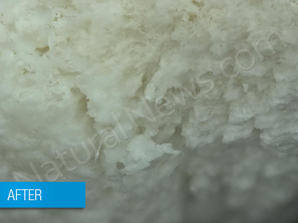 Phosphoric acid used in soda pop shown dissolving teeth in rare video Teeth After 201 600