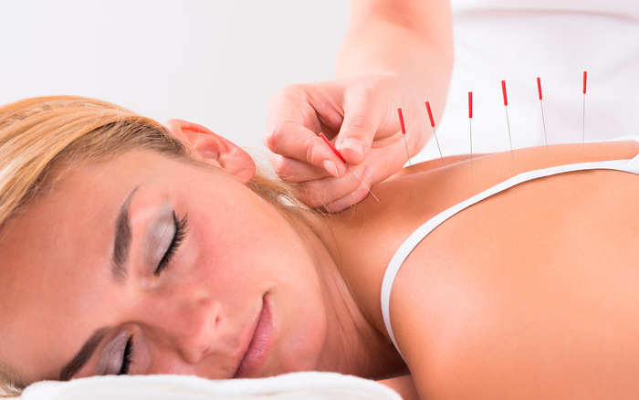 Image: Study finds acupuncture to be more effective in treating pain than morphine