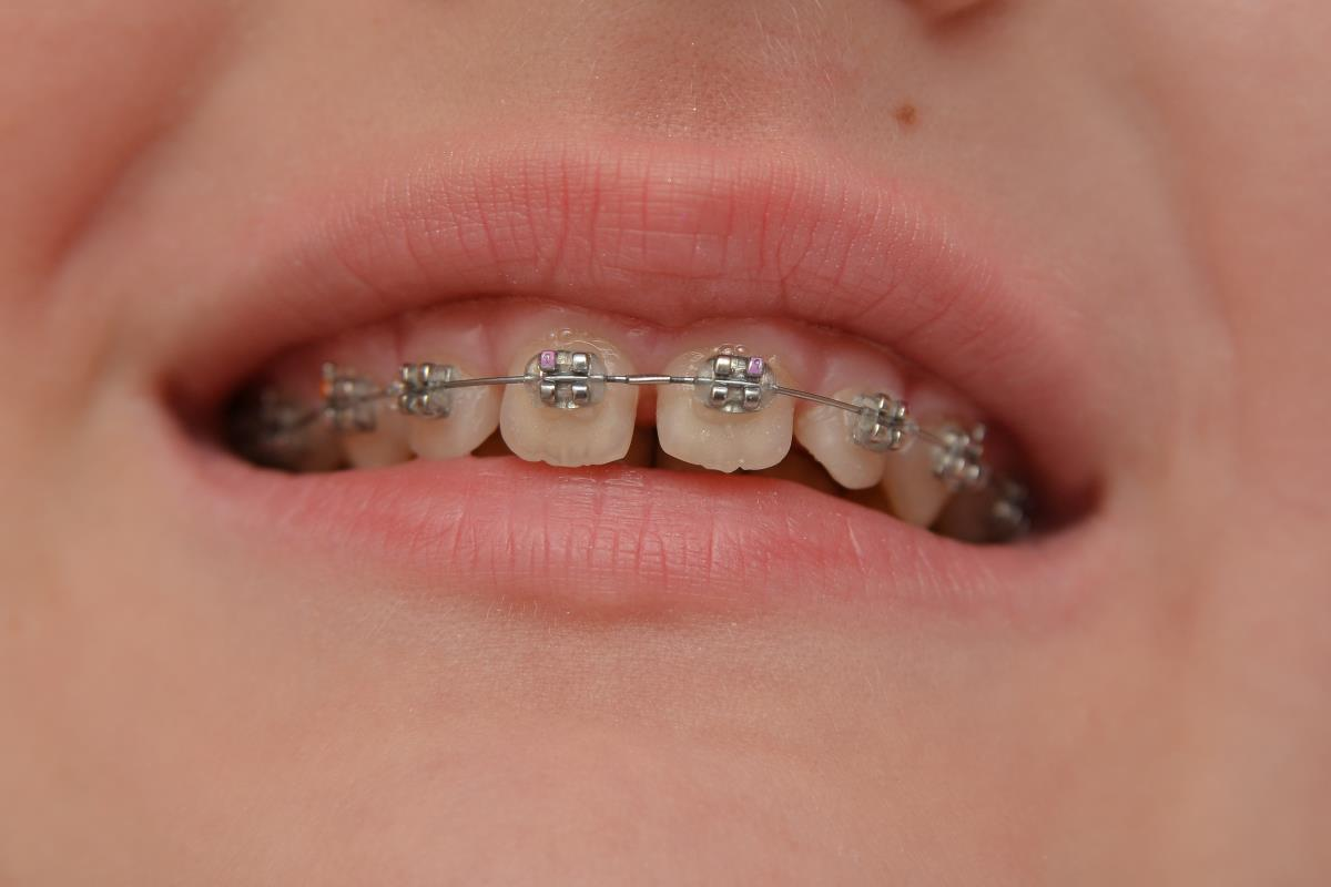 Image: Kids are doing DIY braces on YouTube and the results are scary