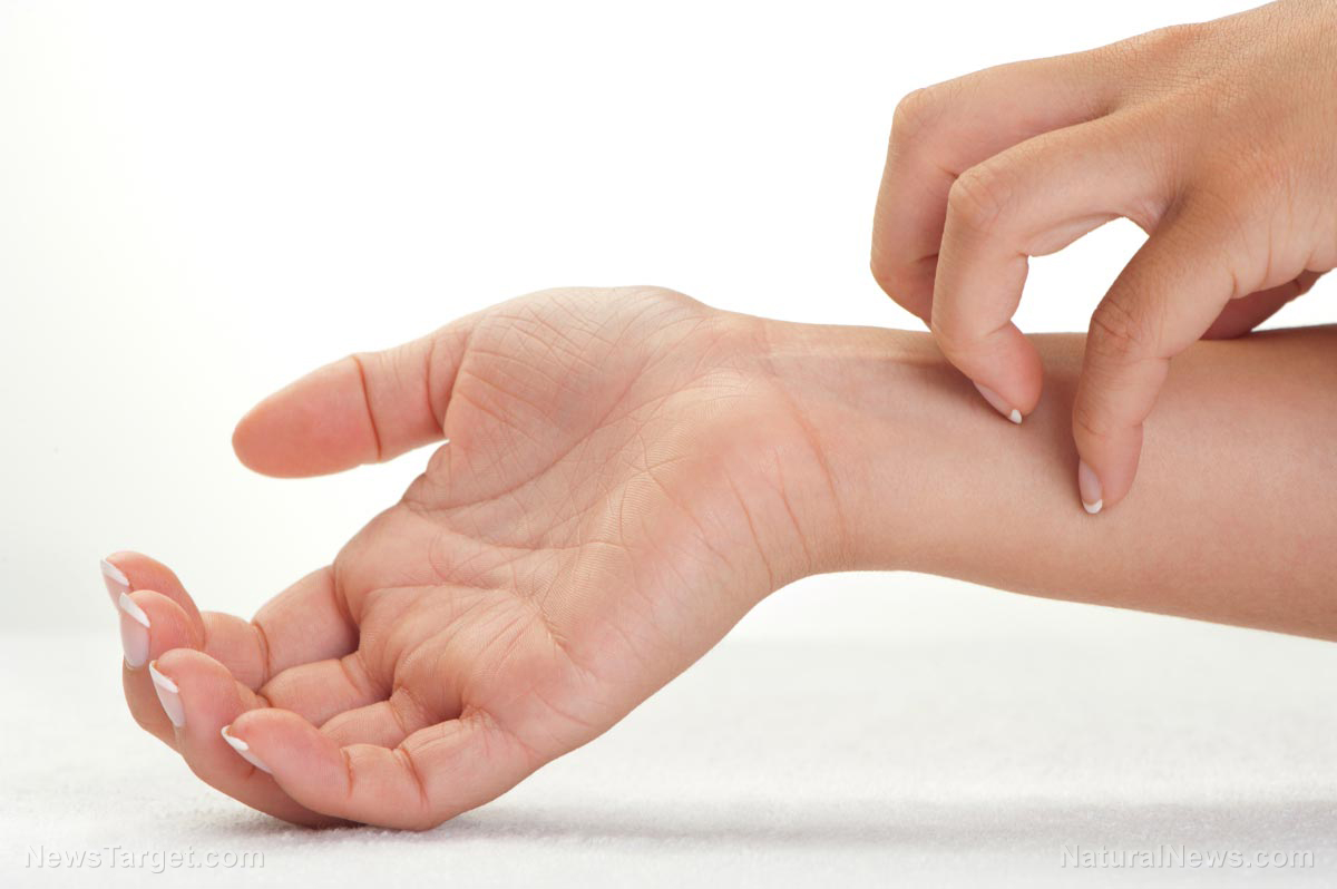 Fda Approves Outlandish 37 000 Drug To Fight Eczema
