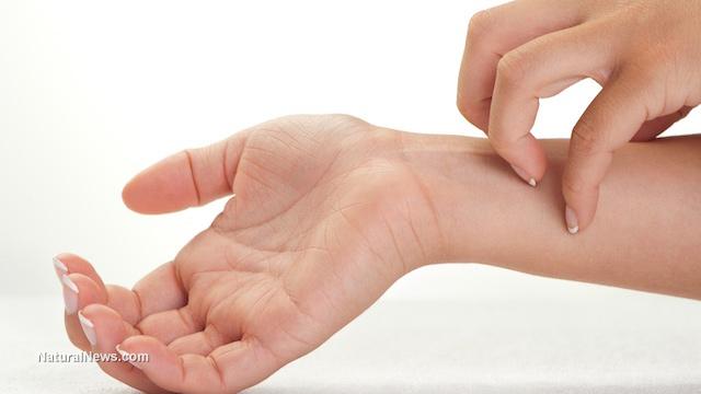 Scratch-Itch-Skin.jpg