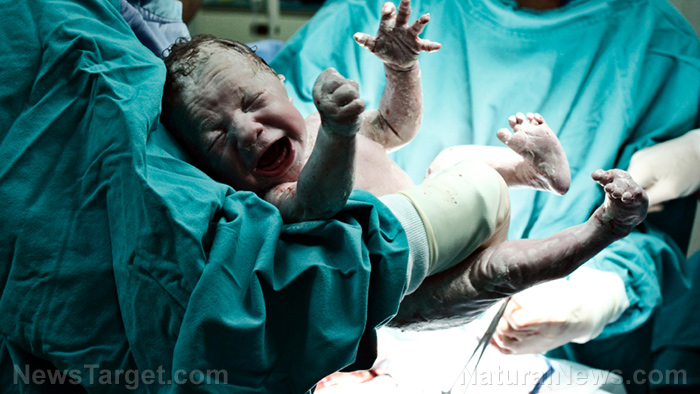 "Image: Doctor sued for ""circumcision assault"" of infant… genital mutilation happens to boys, too"