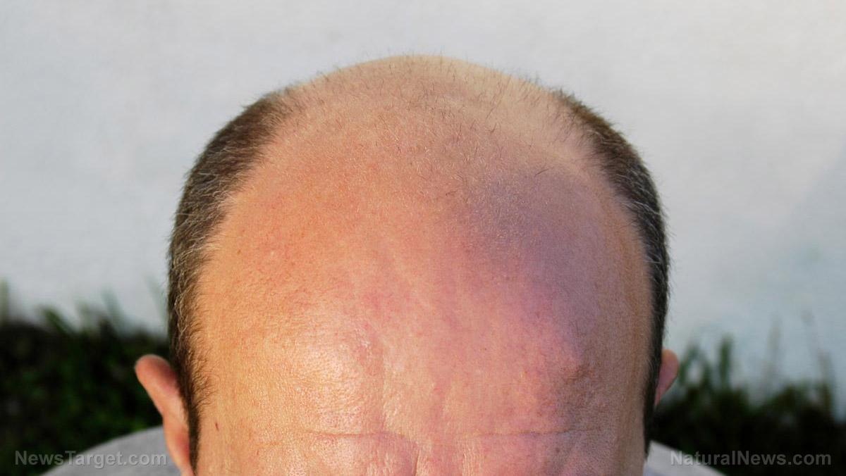 Natural Hair Loss Treatment For Men