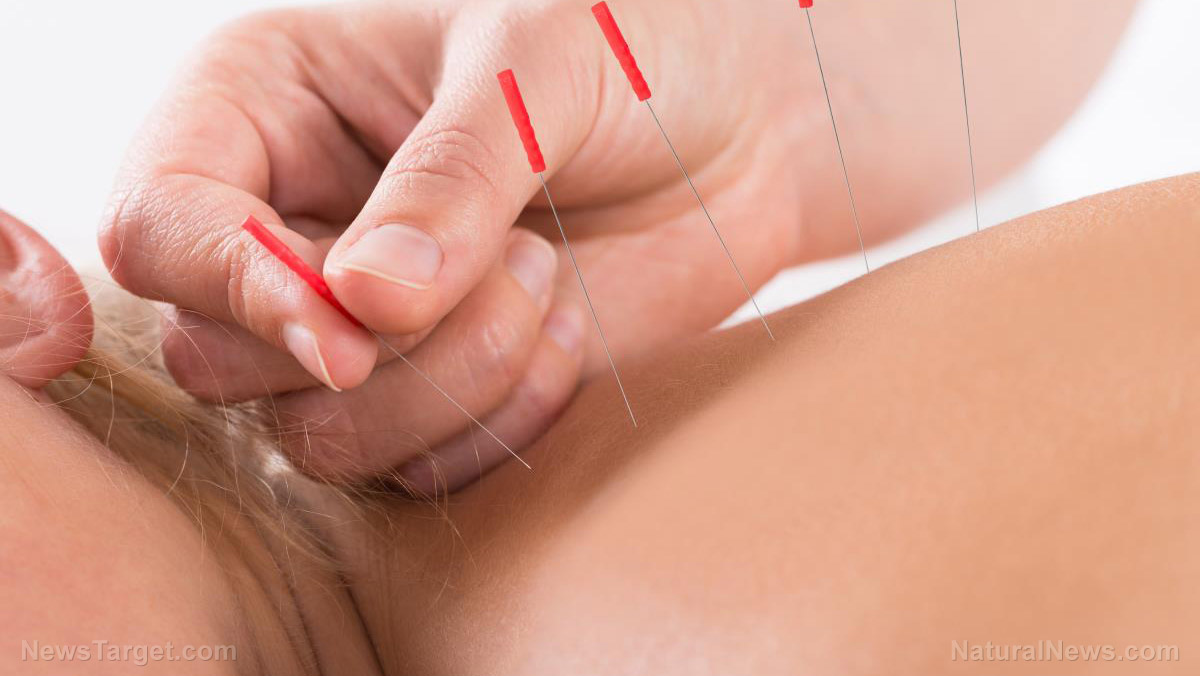 Image: Research shows acupuncture can be more effective than medication for indigestion