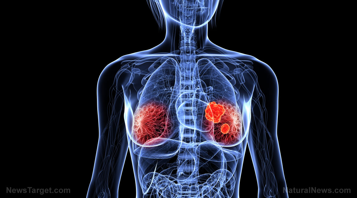 Image: Decreased melatonin disrupts the body clock and increases cancer risk: Night workers found to have highest risk