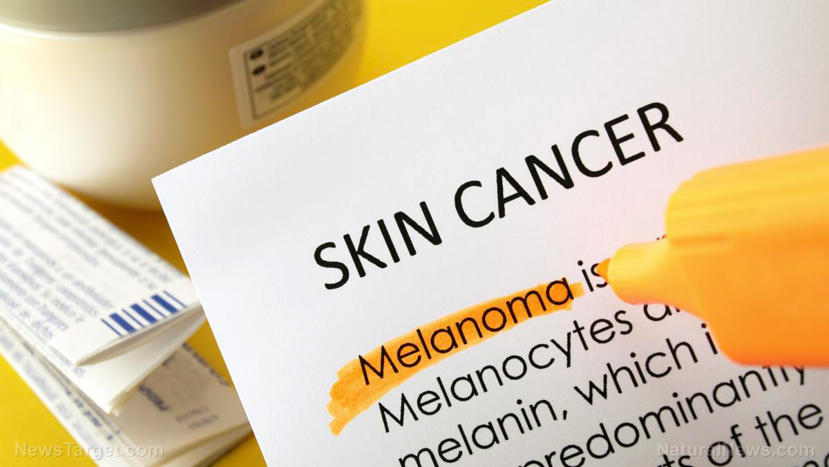 Image: Niacin (vitamin B3) can prevent melanoma, scientists confirm