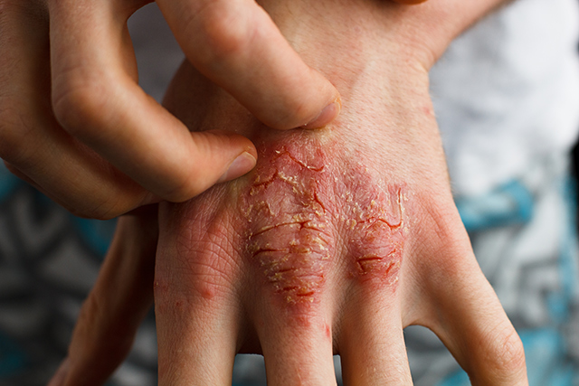 Image: Traditional Chinese medicine is a safe, effective alternative for treating psoriasis