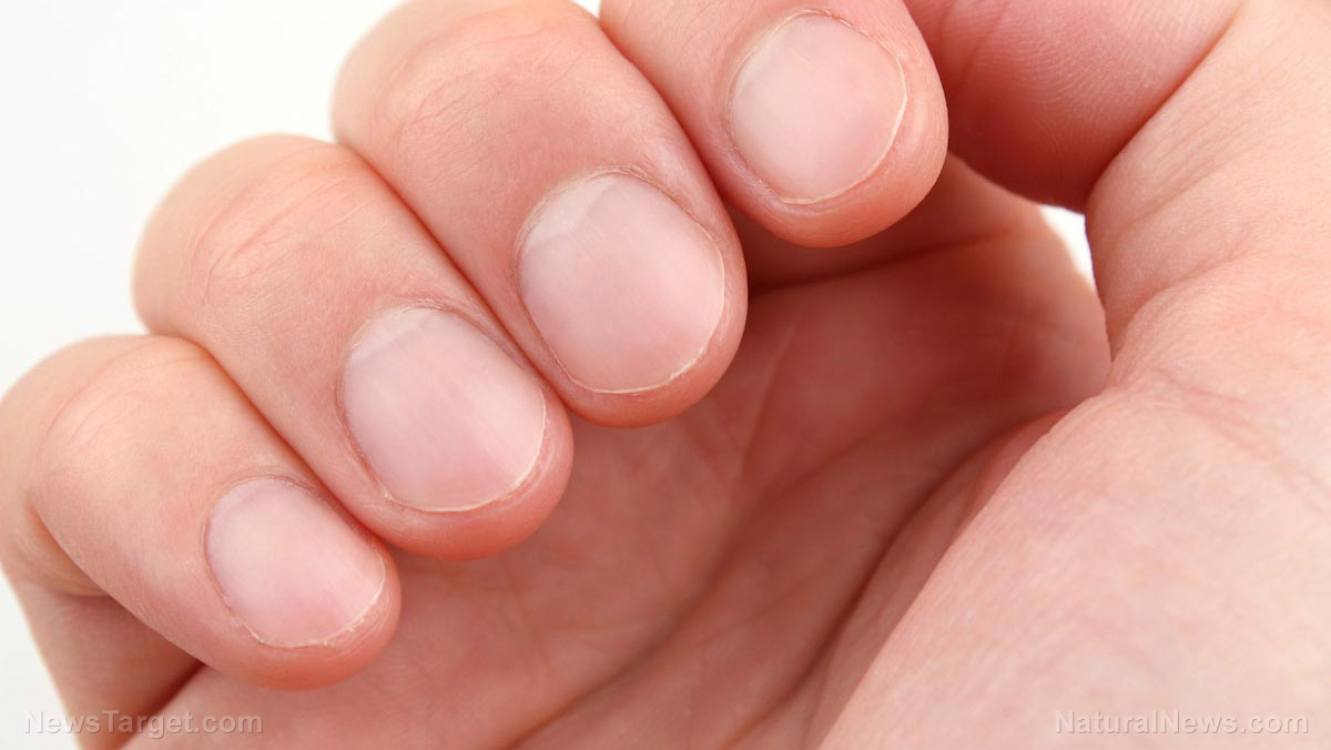 Image: 7 Things that can happen if you keep biting your nails