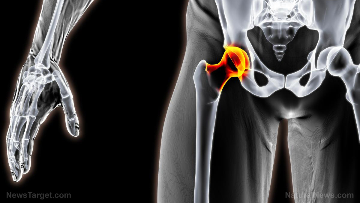 Image: Toxic metals in hip replacements found to cause Alzheimer's