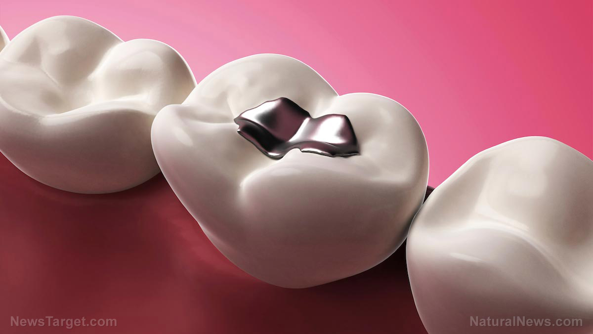 Image: Your dental fillings could be killing you! Dental restorations with mercury can ruin your health