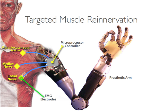 Image: Limb regeneration: Scientists have discovered that the human brain can remap nerves and motor pathways to artificial limbs