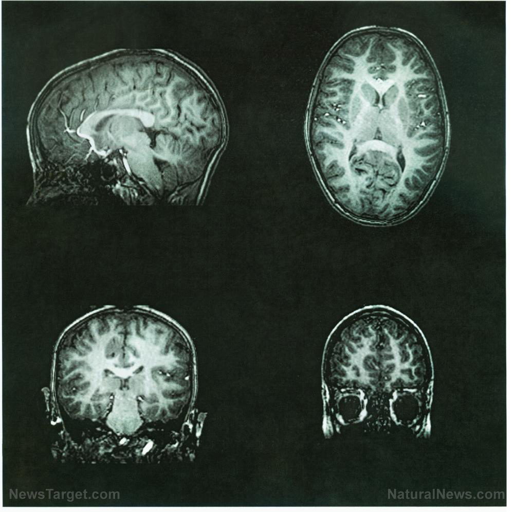 Image: Neurological damage linked to Alzheimer's may be repaired with dietary supplementation