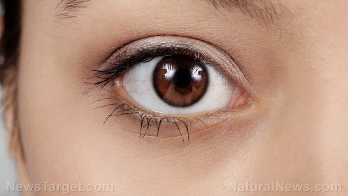 Image: Acupuncture can relieve dry eye symptoms