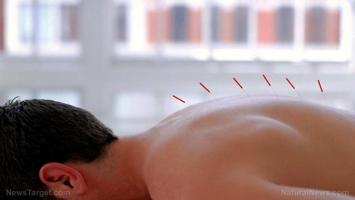 Image: Acupuncture at these specific points alleviates pain in cancer patients