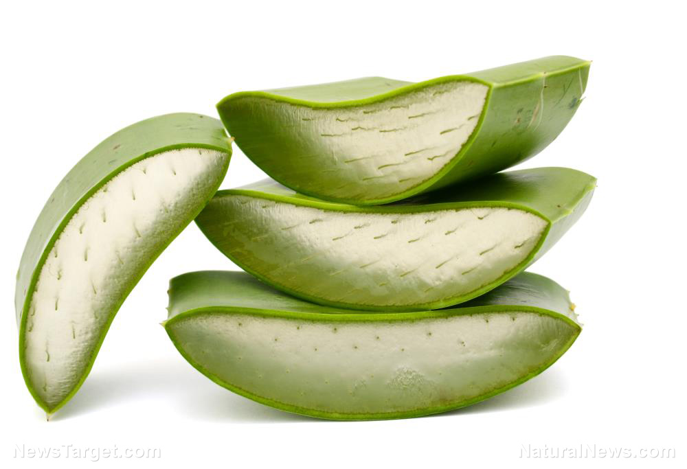 Image: Patients with radiation proctitis benefit from aloe vera therapy