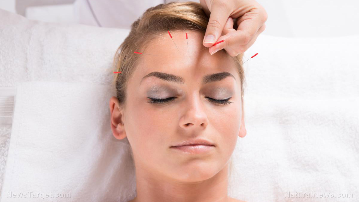 Image: Yes, you can use acupuncture to improve skin conditions