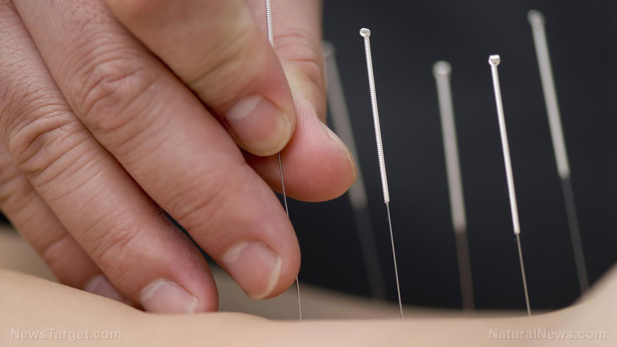 Image: Electroacupuncture found to improve blood flow and skin temperature in patients with poor blood supply to the heart
