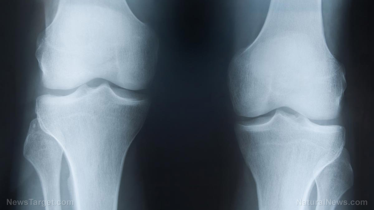 "Image: Having ""noisy knees"" increases your risk of developing osteoarthritis, study concludes"
