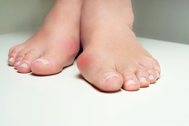 Image: Reflexology is a safe alternative treatment for bunions