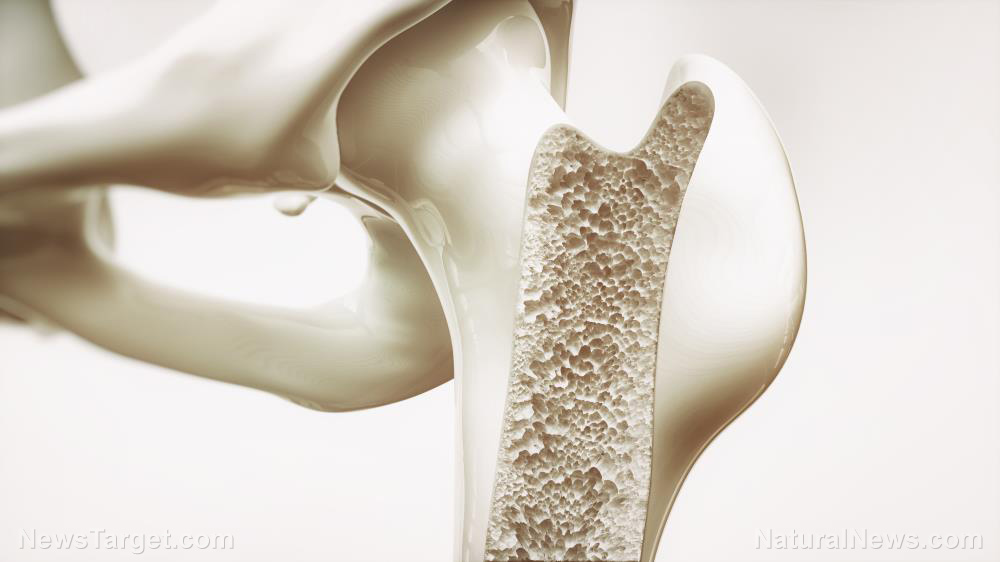 Image: Scientists develop a new biomaterial made from citrate to help hasten bone regeneration
