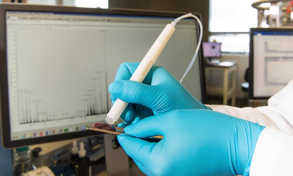 Image: Cancer detection pen spots cancer chemicals in seconds