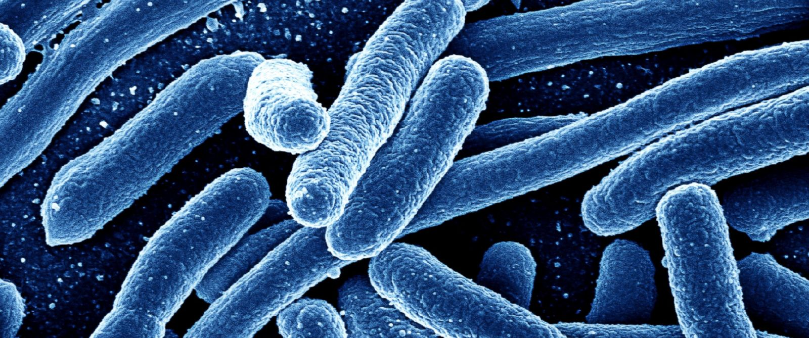 Image: NASA scientists discover FIVE new previously unknown strains of antibiotic-resistant bacteria in SPACE