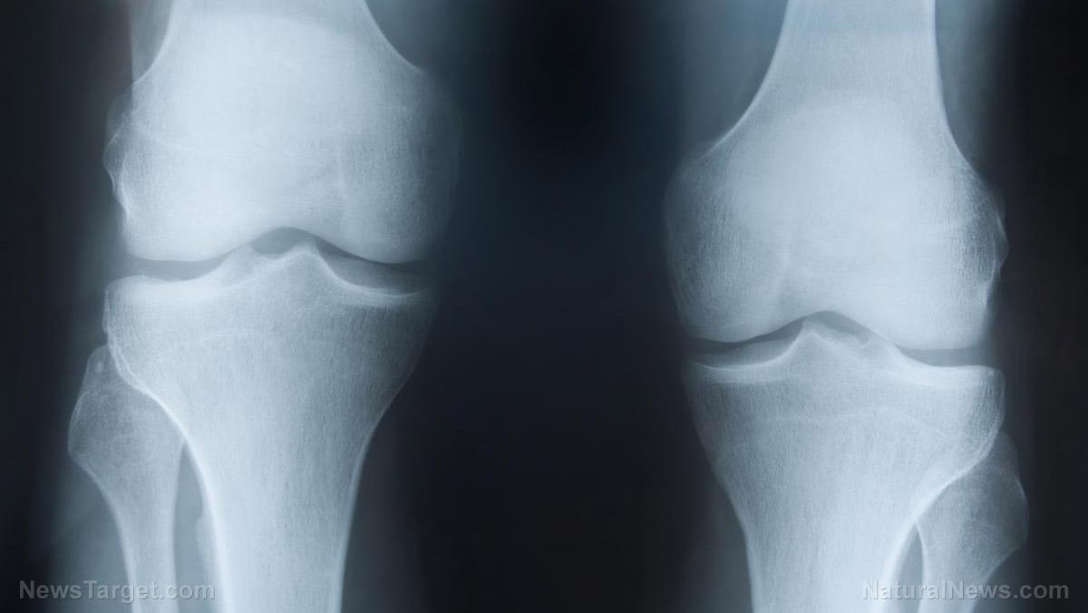 Afbeelding: Corrigerende artritis in de knie: niet-invasieve botgroeistimulatoren zoals magnetische of ultrasone behandelingen die de pijn, kwaliteit van leven verbeteren