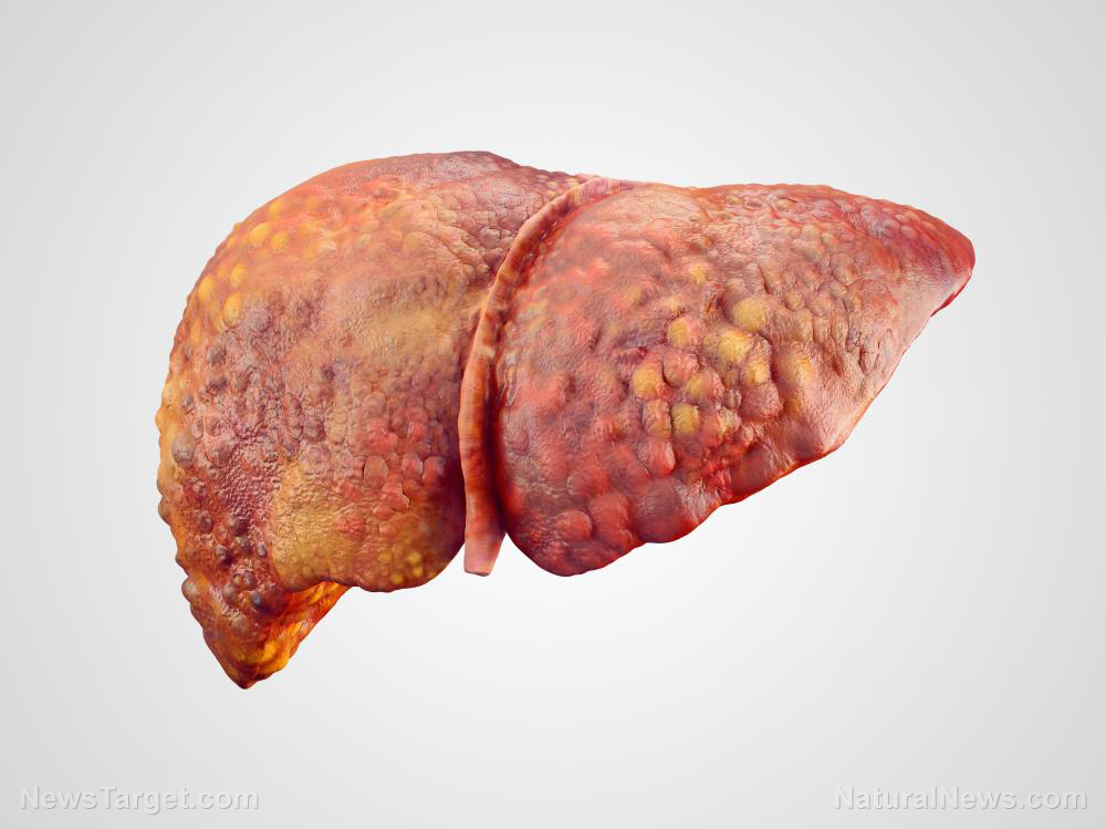 Image: Study concludes that the giant-leaved fig reduces oxidative stress in the liver