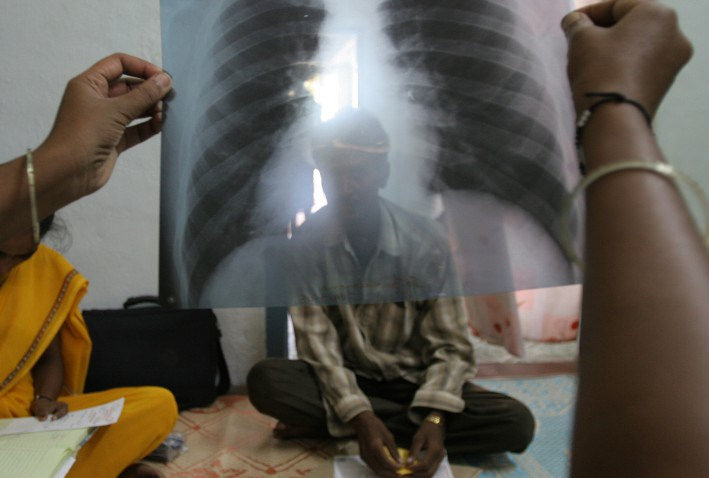 Image: Muslim refugees bringing wave of tuberculosis to Minnesota… CDC silent, media refuses to accurately cover