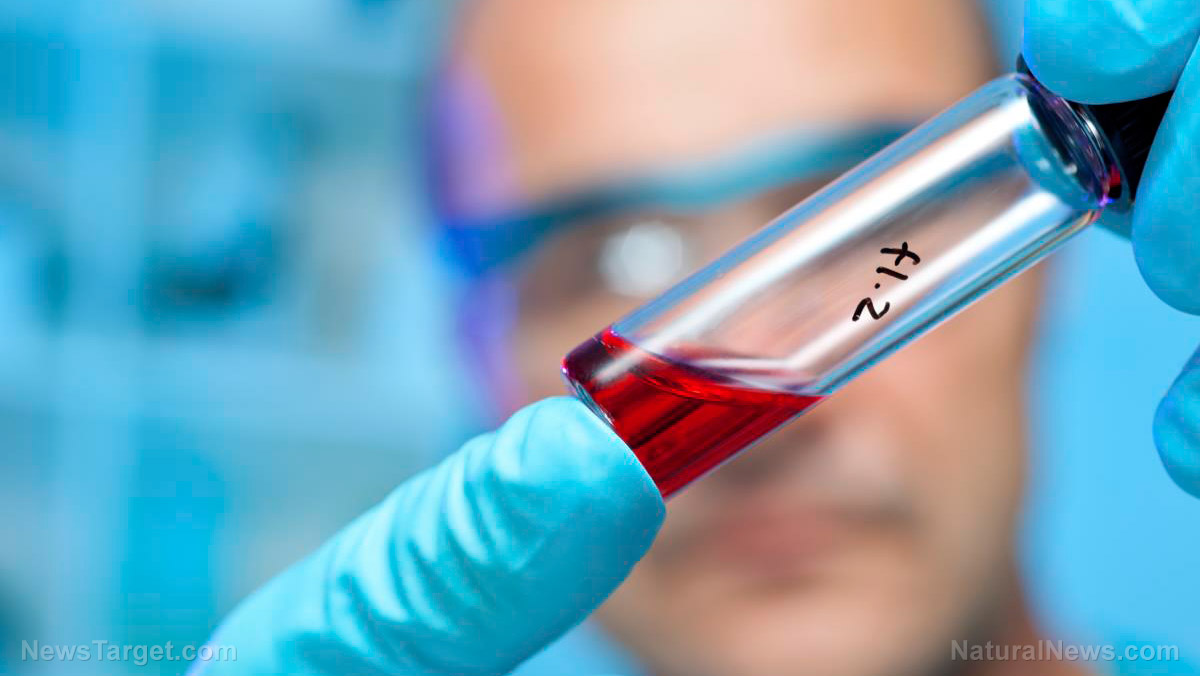 Image: Preventing Alzheimer's: Scientists develop blood test capable of detecting toxic protein build up related to Alzheimer's disease