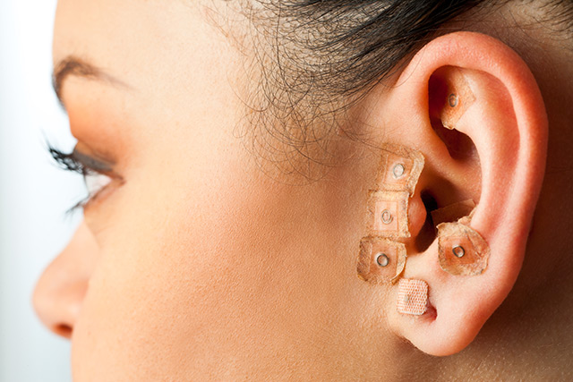 Image: Ear acupuncture found to aid substance abuse treatments