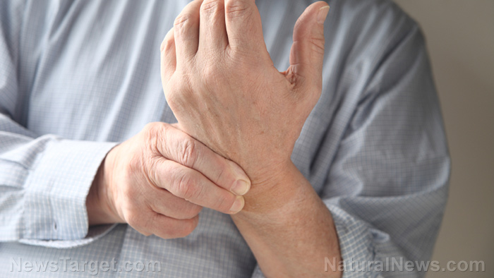 Image: 14 Natural treatments for rheumatoid arthritis