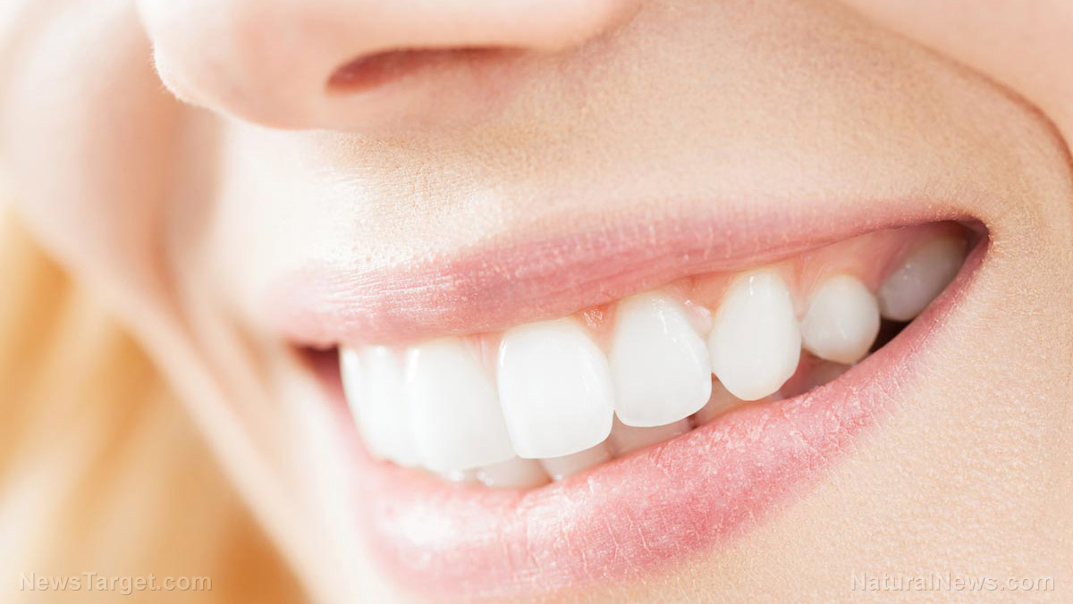 Image: Teeth whitening does more harm than good – it can rot your teeth, study finds