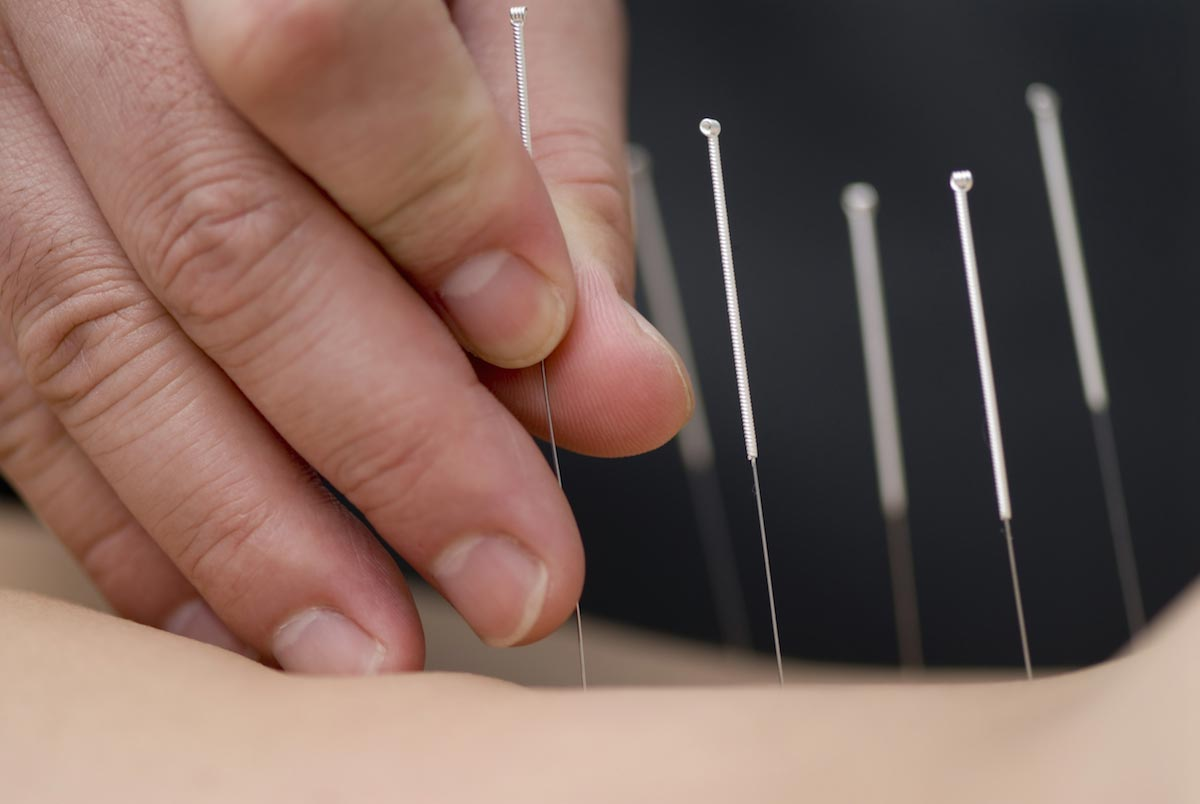 Image: Acupuncture can do more than just relieve pain: It also improves quality of life