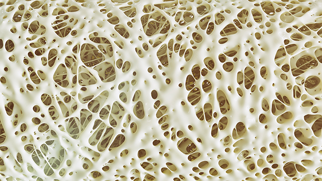 Image: Drugs are bad for your bones: Women can get osteoporosis even before menopause, if they take these drugs