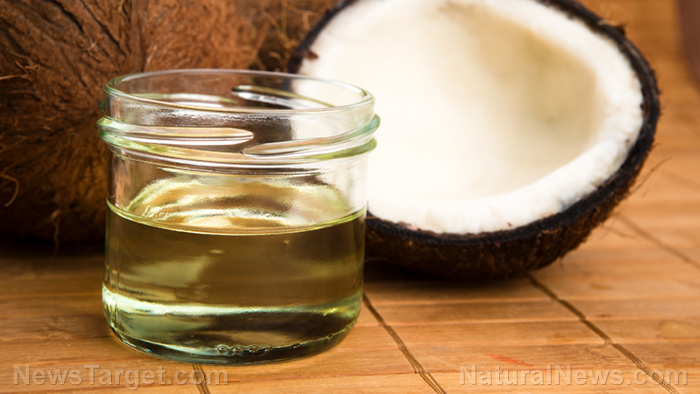 Image: Researchers study coconut oil as a natural treatment for antibiotic-resistant bacterial infections, severe burns