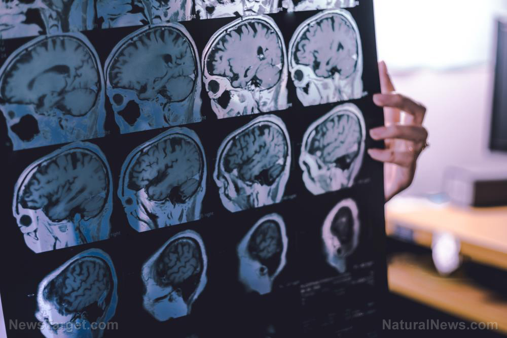 Image: STUDY: Covid vaccines cause Alzheimer's, brain changes