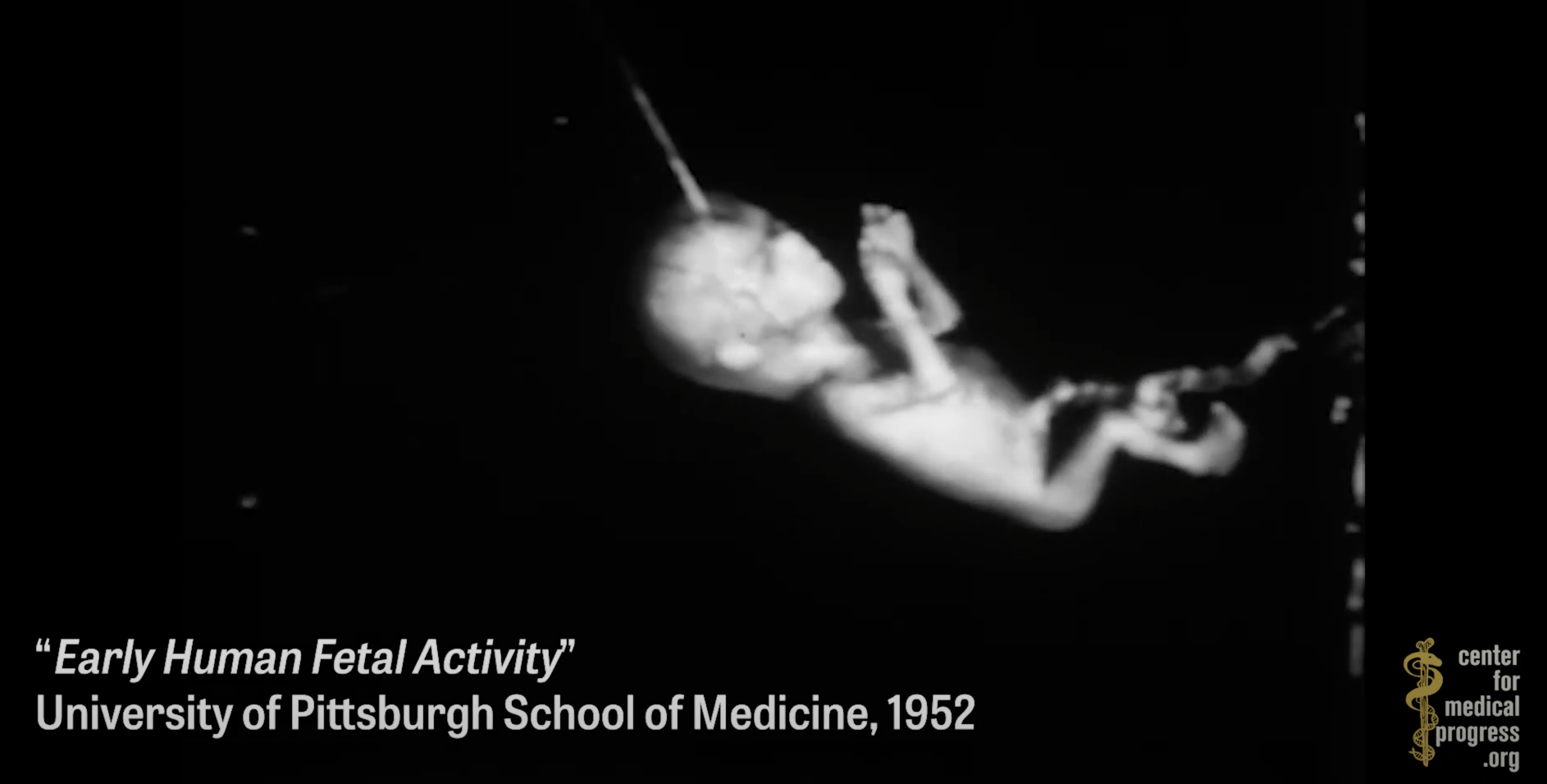 Image: Another TRUE conspiracy reported by Natural News now confirmed reality: Organ harvesting of aborted babies